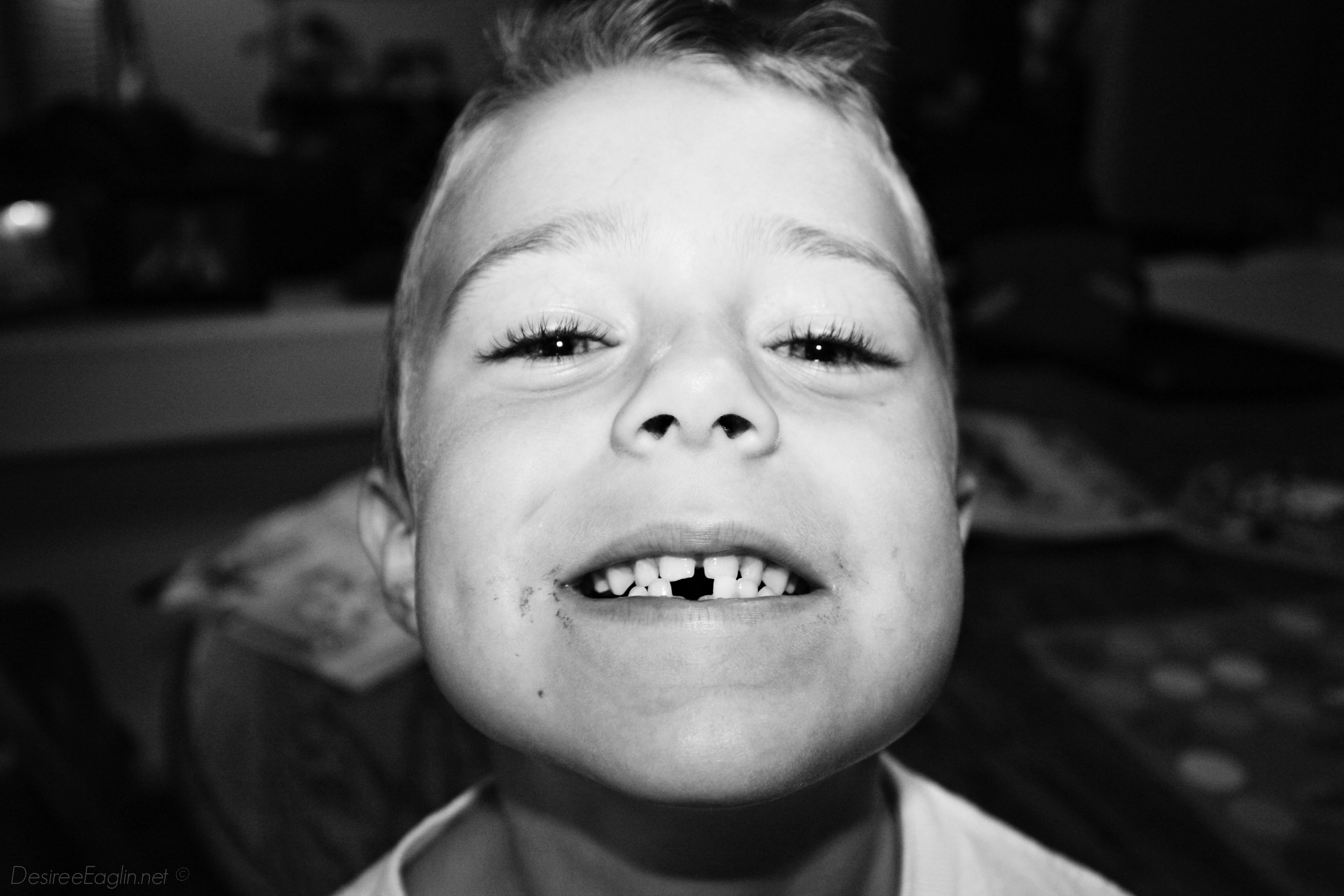 lost tooth, first lost tooth, loose teeth, kids teeth, kids losing teeth